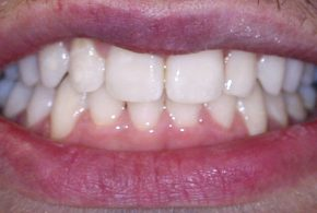 Surgery Free Orthodontics after IMG_2949 Cropped Upres