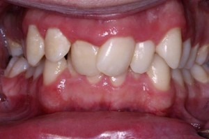 Surgery Free Orthodontics before IMG_2949 Cropped Upres