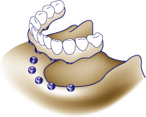first bite dental cosmetic dentistry dentures diag-dentureimplant