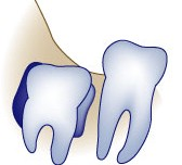 Cysts around wisdom teeth