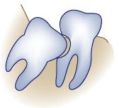 Damage to nearby molars by a wisdom tooth