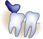 first bite dental general dentistry wisdom teeth wisdom-infection