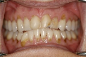 Dental-Erosion essendon dentist