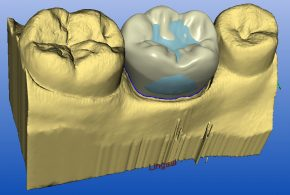 cerec-melbourne software