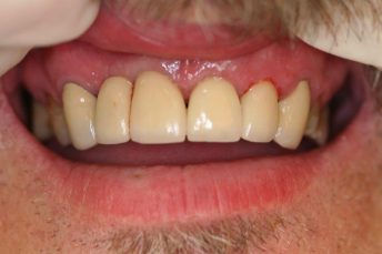 Image of patient's teeth before mini dental implants