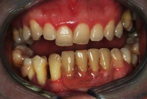 Periodontics-essendon-after_03-LR