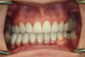 Periodontics-essendon-after_09-cropped