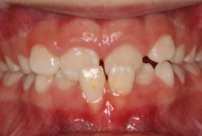 Anterior Cross Bite Firstbite 1