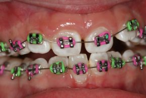 Anterior Cross Bite Firstbite 1 Braces