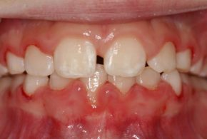 Anterior Cross Bite Firstbite 1 finished