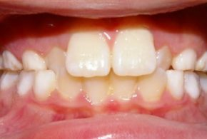 Anterior Cross Bite Firstbite