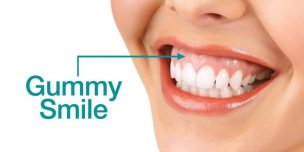 gummy smile photo illustration