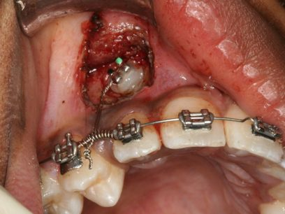Orthodontic Essendon Braces Invisalign Firstbite