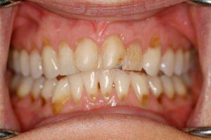 Dental-Erosion-teeth-rotten-oral-health-disease