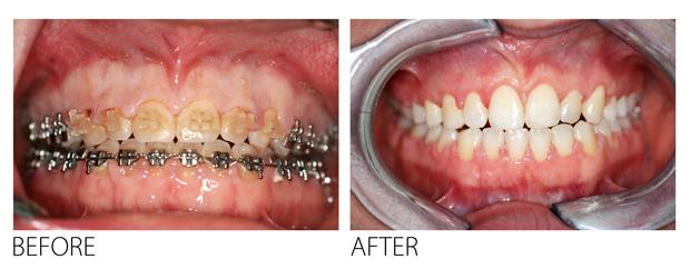 Gum-Lift-dental-gummy-smile