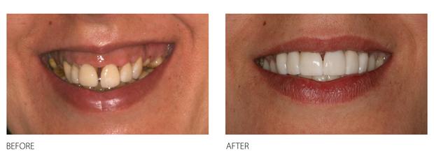 Major-Reconstructions-teeth-smile