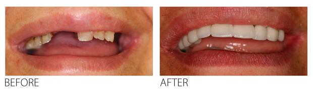 creating-oral-health-plan-firstbite-dental