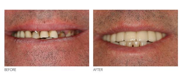dental-implants-improve-smile-teeth