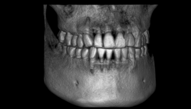 xray-3D-dental-implants-imaging