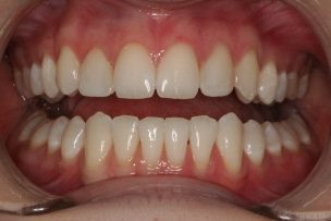 Composite Veneers Essendon Dentist
