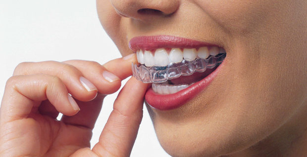 Melbourne-Invisalign-Essendon-FirstBite-Dental-Trio-2