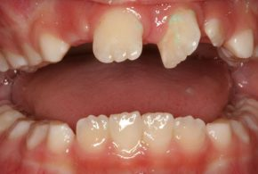 Early Orthodontic Treatment And Intervention Firstbite