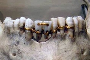 Ancient Egyptian dental bridge using donar teeth and gold wire c 2000 BC