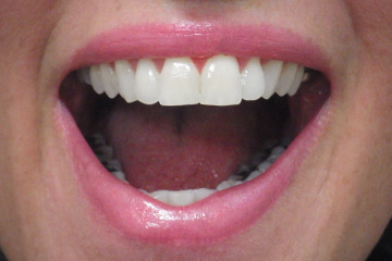 Locked jaw lockjaw temporomandibular joint (TMJ) dental trismus case study 03 2 weeks after treatment Melbourne dentist Essendon